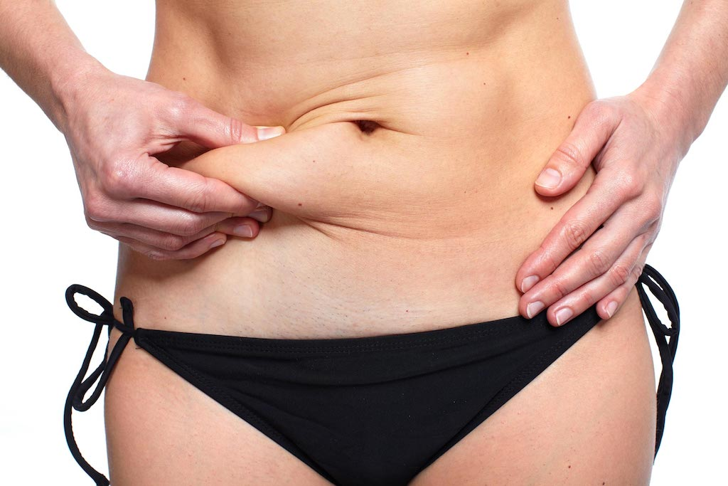 Coolsculpting - Fat Reduction - Fort Lauderdale